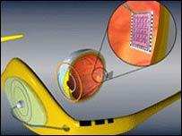 Sistema ARgus II, implantes de visión electrónica