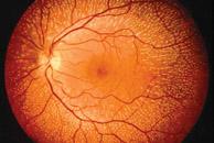 Imagen del ojo.