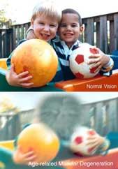 Visión con degeneración macular.