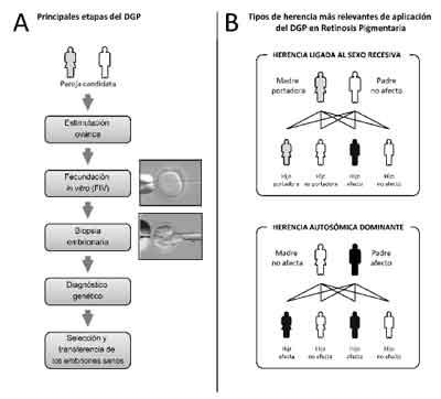 Figura A: Principales etapas del DGP. Figura B: Tipos de herencia más relevantes de aplicación del DGP en Retinosis Pigmentaria