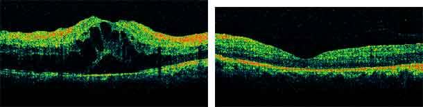Tomografía óptica de coherencia
