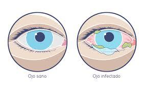 Ojo sano y ojo con conjuntivitis